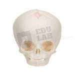 Human Foetal Skull Model