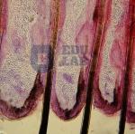 Skin and Hair Follicles (40x)