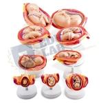 Pregnancy Model Set Model